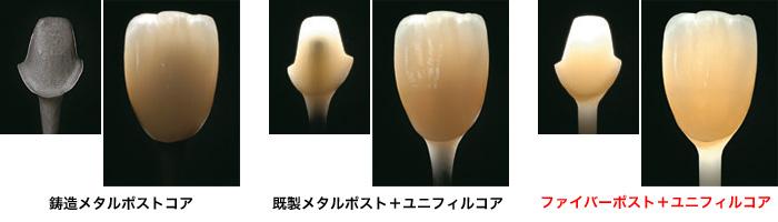 ファイバーコア-長崎市の歯科・歯医者・インプラント・口腔 ...